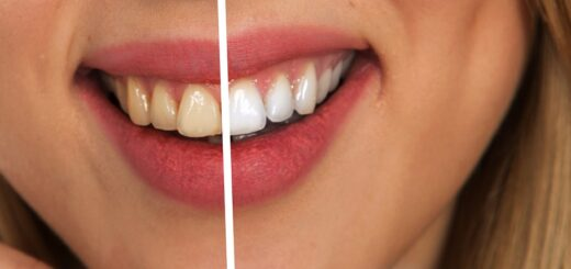 natural foods whiten teeth
