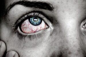 dry eye syndrome medicinal plants