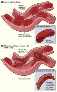 Sickle cell affects bloodflow